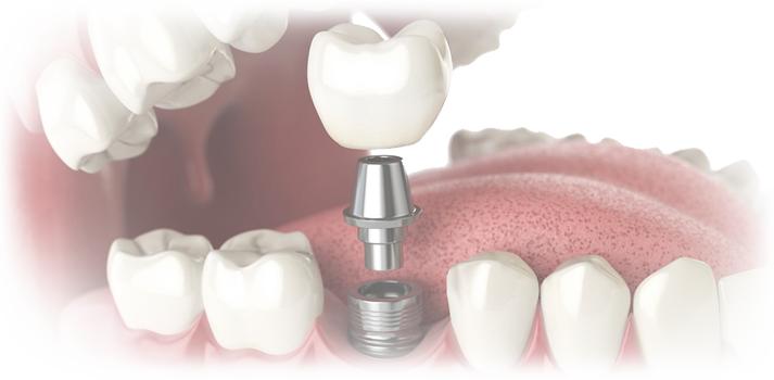 best dental implant center in Hyderabad